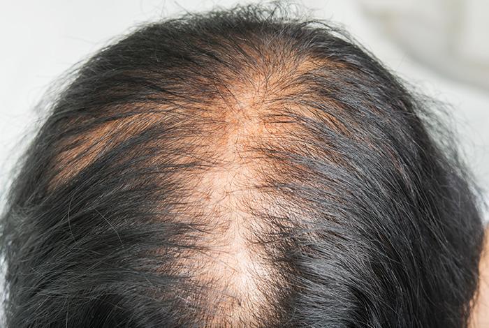 बालों-को-झड़ने-से-रोकता-हैं